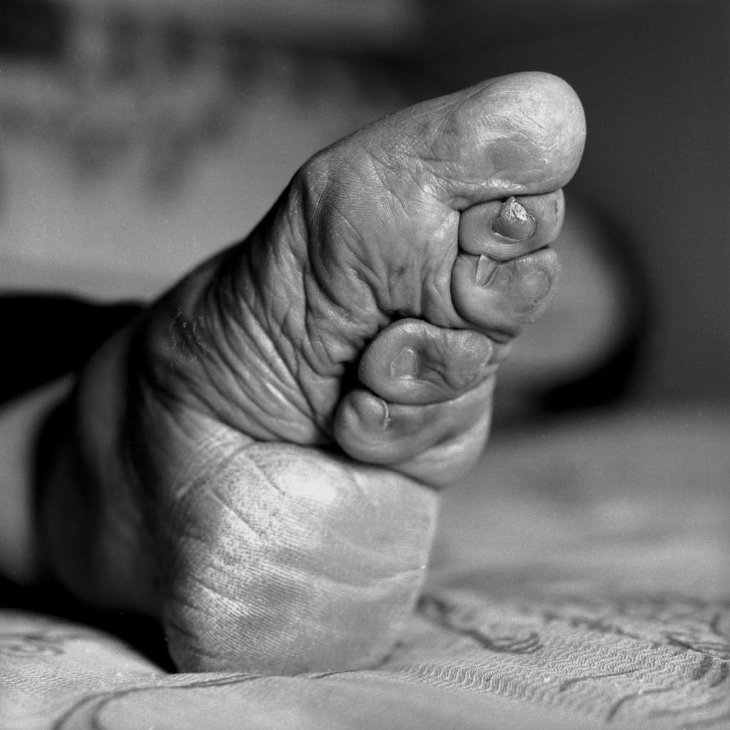 """Un piede """"fasciato"""""""